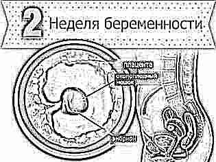 Три недели беременности боли внизу живота выделения thumbnail