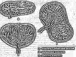 Фото плаценты при выкидыше 19