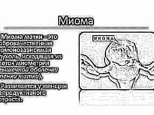 Положение плода при беременности 50
