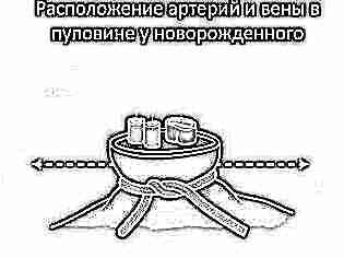 Сколько сосудов в пуповине при синдроме дауна