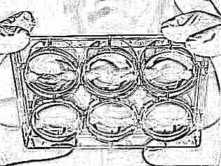 Обязательно ли кровотечение при имплантации эмбриона