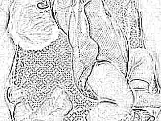 Грудной ребенок выгибается дугой и плачет