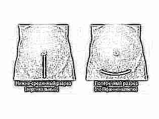 Шрам кесарево сечение фото 56