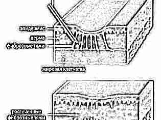 Шрам кесарево сечение фото 67