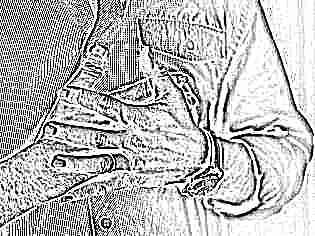 Сахарный диабет по Синельникову: лечение заболевание через любовь к болезни