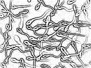 Что такое фертильность у женщин простыми