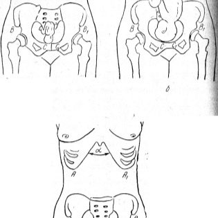 Беременность болят кости таза и ноги