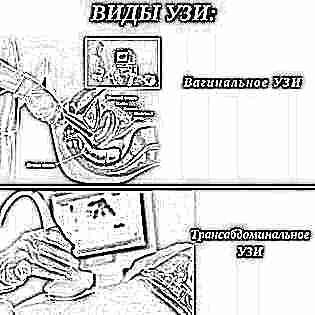 Анализ крови в 16 17 недель