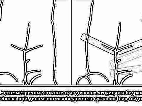 Изображение - Ультразвуковое исследование тазобедренных суставов у новорожденных норма uzi-tazobedrennyh-sustavov-dlya-novorozhdennyh-i-grudnichkov-4