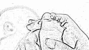 Скрининг новорожденных