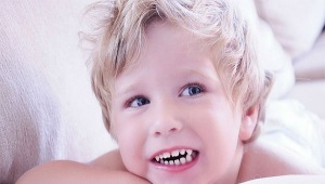 Бруксизм: ребенок скрипит зубами