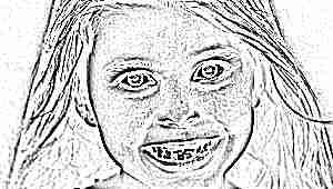 Кривые зубы у детей