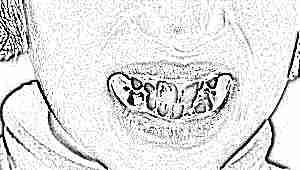 Причины черного налета на зубах у детей