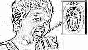 Симптомы, лечение и профилактика дифтерии у детей