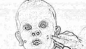 Уход за кожей ребенка