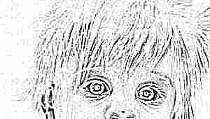 Анизокория - разные зрачки по размеру у ребенка