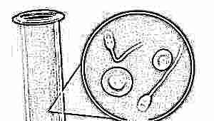 Что такое гемоспермия и как она влияет на зачатие?