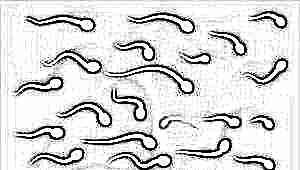 Что такое олигозооспермия и как она влияет на зачатие?