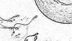 Как влияет подвижность сперматозоидов на успешность зачатия?