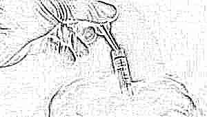 Что такое криоконсервация эмбрионов и зачем она нужна?