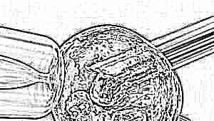 Суперовуляция и стимуляция яичников перед ЭКО