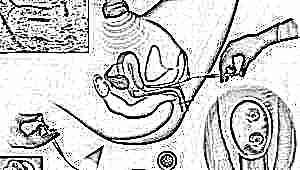 Почему не всегда происходит имплантация эмбриона после ЭКО? Причины и признаки