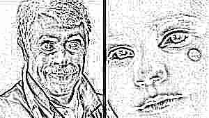 Доктор Комаровский о родинках у детей