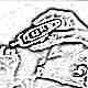 Сахарный диабет 1 типа у ребенка