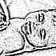 Причины, симптомы, лечение и последствия желтухи у новорожденных