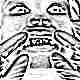 Кариес молочных зубов у ребенка
