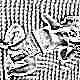 Рефлекс Моро у новорожденных