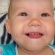 Серебрение молочных зубов