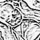 Киста головного мозга у новорожденных и грудничков