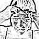 Лечение угревой сыпи у детей