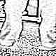 Варусная деформация стопы у детей
