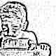 Остеопороз у детей: симптомы и лечение
