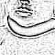 Признаки и симптомы кривошеи у новорожденных и грудничков