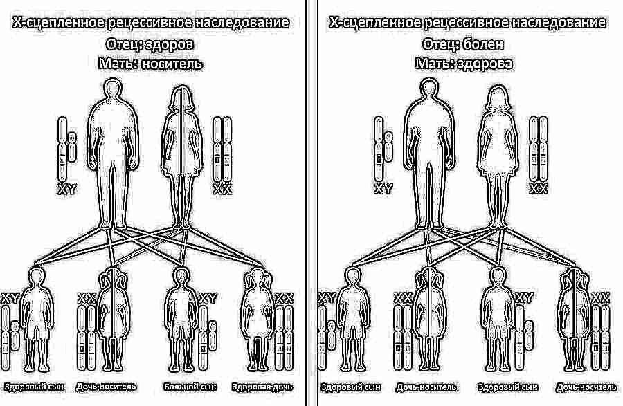 Гемофилия у детей: симптомы, лечение и уход, вероятность рождения ...