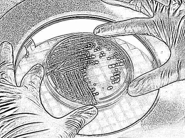 Расшифровка анализа кала на дисбактериоз у детей