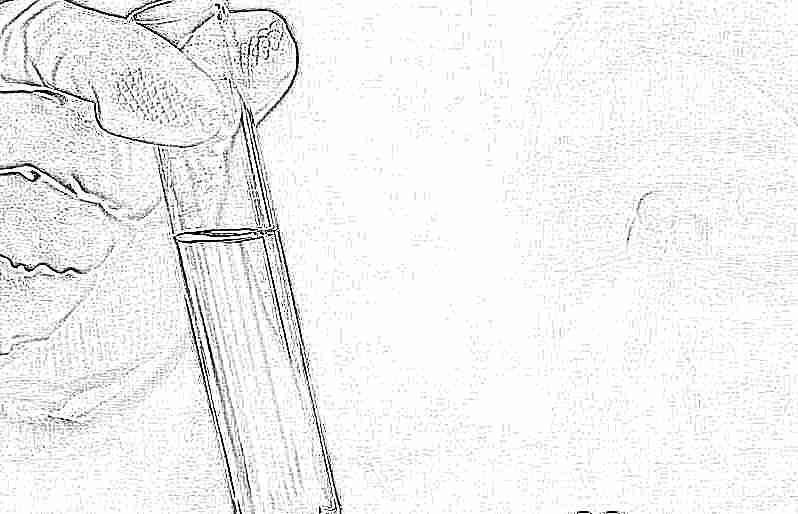 анализ мочи лейкоциты сплошь