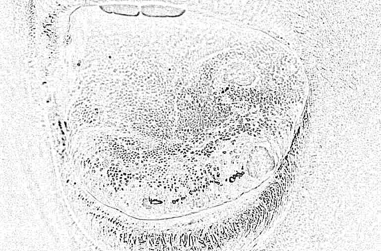 стоматит на языке у детей фото лечение