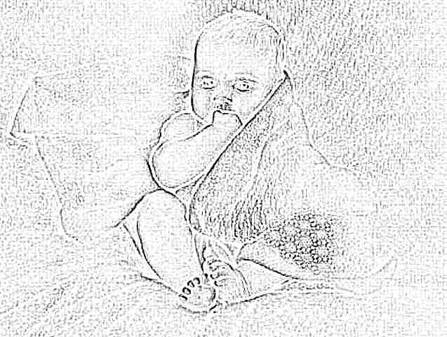 Как снизить билирубин в домашних условиях новорожденному 295