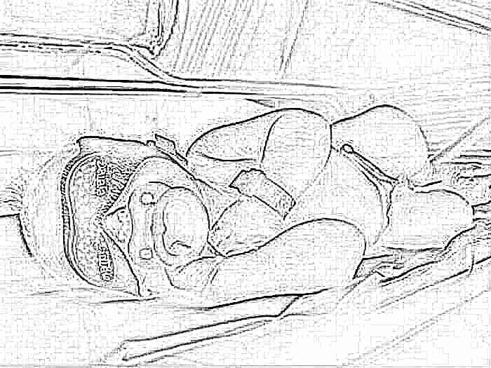 Желтуха у новорожденного фототерапия
