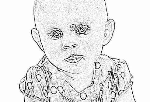 Как проходит гемангиома у детей признаки