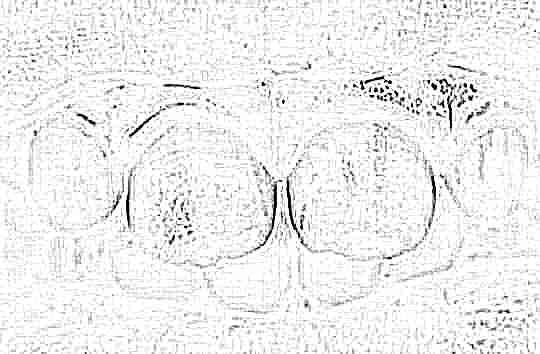 Лечение ногтей при псориазе фото