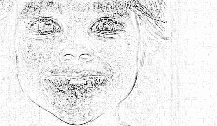 Когда меняются молочные клыки у детей