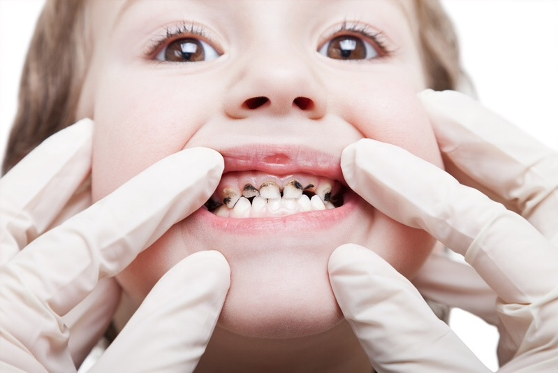 Кариес молочных зубов: корни проблемы и варианты лечения