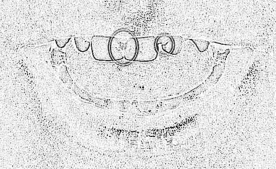 Кариес молочных зубов у детей раннего возраста (фото) и 89