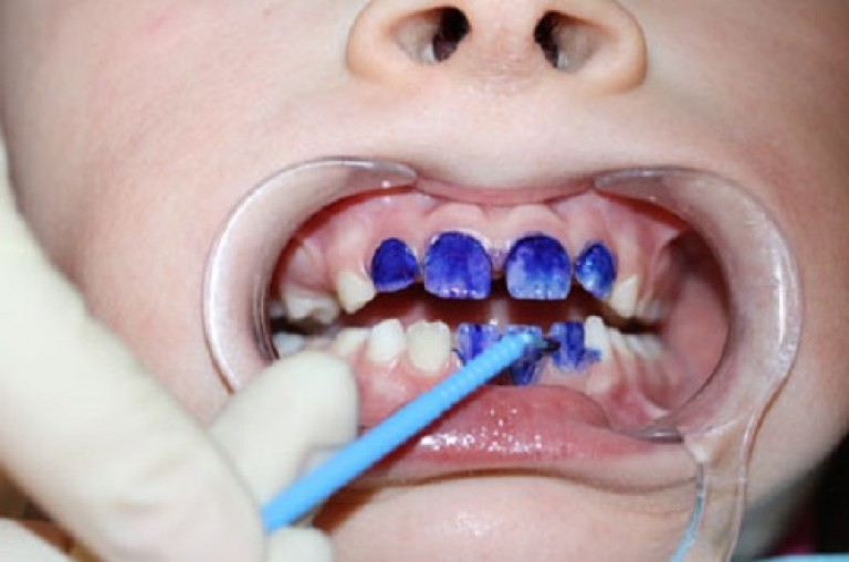 От чего появляется налет на молочных зубах