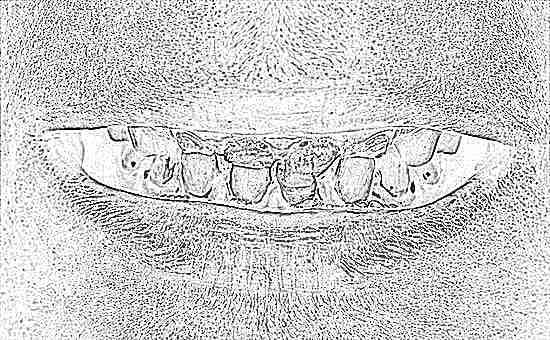 У ребенка коричневый налет на зубах коренных